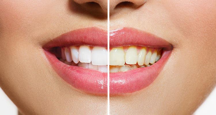 Schöne Zähne mit professioneller Zahnreinigung