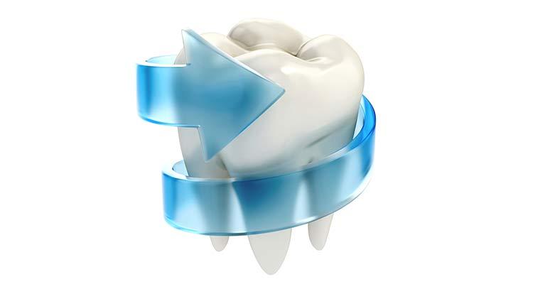 Sanierung der Zähne
