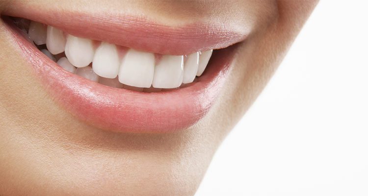 Schöne Zähne mit Veneers
