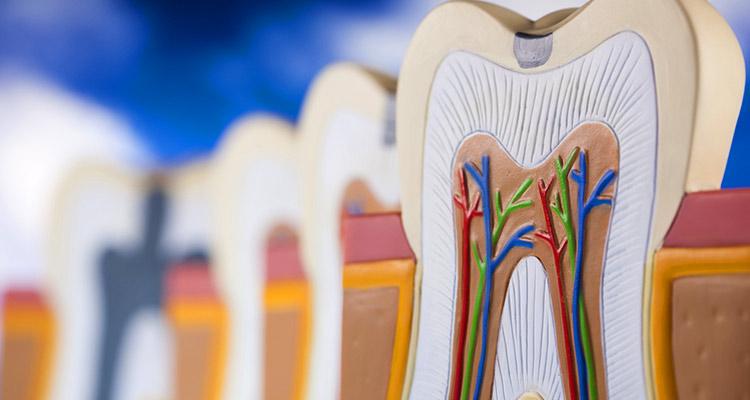 Zahnversiegelungen